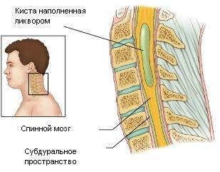 Сирингомиелия — симптомы и лечение