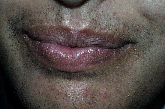 Гиперандрогения — симптомы и лечение