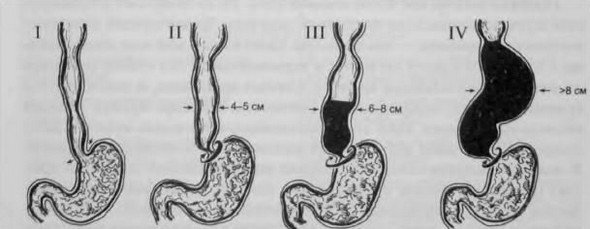 Ахалазия кардии пищевода — симптомы и лечение
