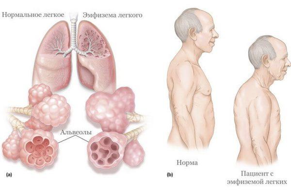 Эмфизема легких - симптомы и лечение, фото и видео.