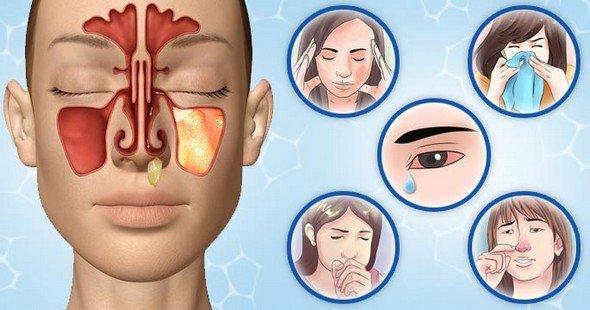 Гнойный гайморит — симптомы и лечение