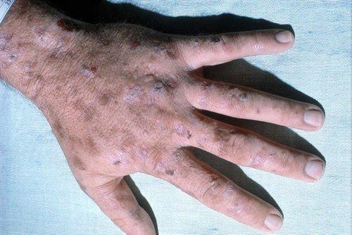 Порфирия — симптомы и лечение, фото и видео