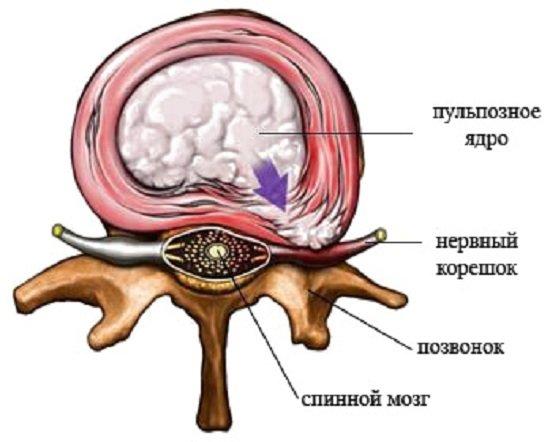 Корешковый синдром — симптомы и лечение