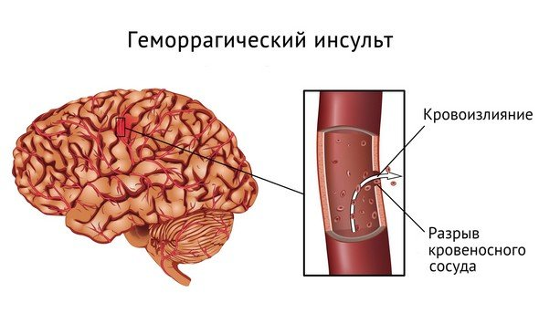 Кровоизлияние в мозг — симптомы и лечение