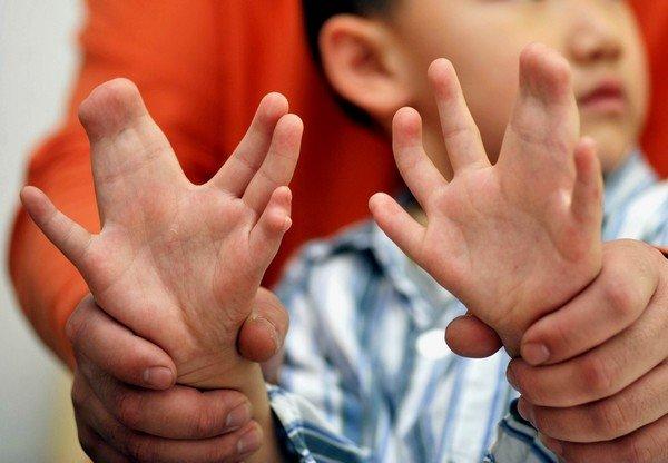 Синдактилия у детей — симптомы и лечение, фото и видео