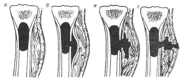 Гематогенный остеомиелит — симптомы и лечение