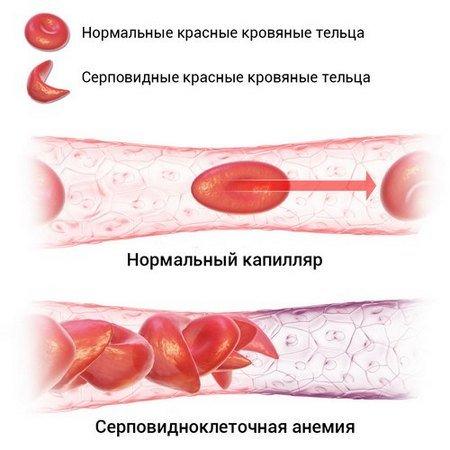 Гемолитическая анемия — симптомы и лечение
