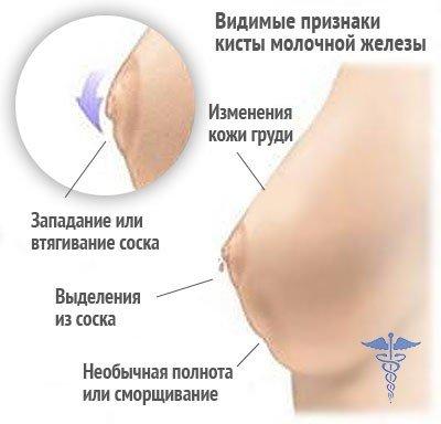 Киста молочной железы — симптомы и лечение