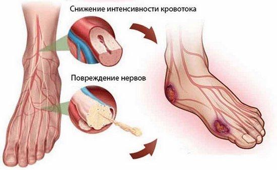 Микроангиопатия — симптомы и лечение