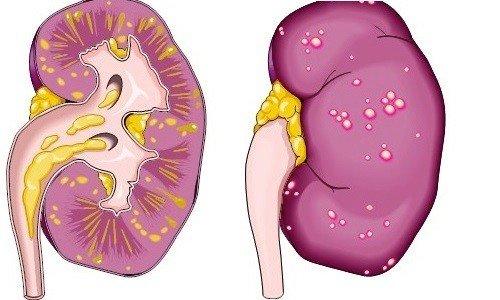 Паранефрит — симптомы и лечение