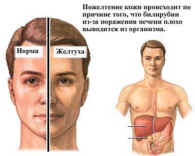 Желтуха — симптомы и лечение