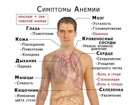 Железодефицитная анемия — симптомы и лечение