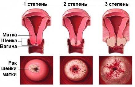 Рак шейки матки — симптомы и лечение