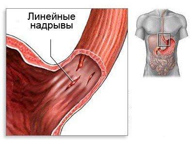Желудочно кишечное кровотечение — симптомы и лечение