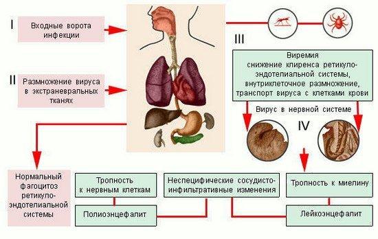 Энцефалит — симптомы и лечение
