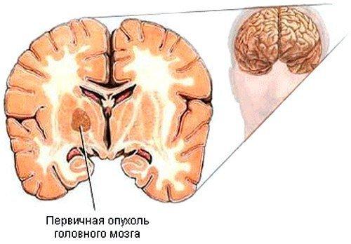 Рак головного мозга — симптомы и лечение