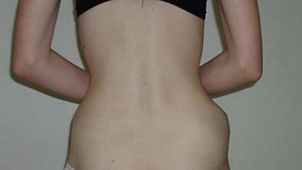 Остеохондрома — симптомы и лечение
