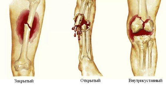 Патологический перелом — симптомы и лечение