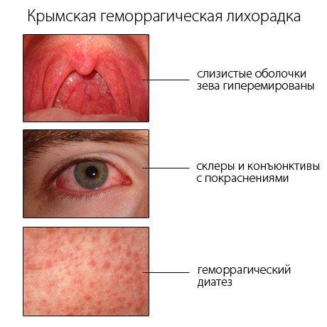 Геморрагическая лихорадка: симптомы и лечение