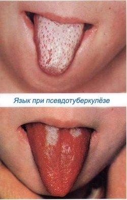 Псевдотуберкулез — симптомы и лечение