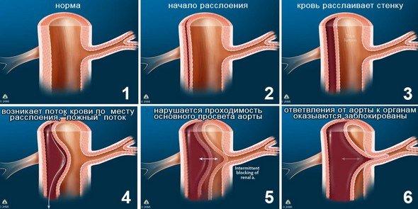 Расслоение аорты — симптомы и лечение
