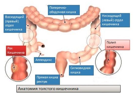 Полипы прямой кишки — симптомы и лечение