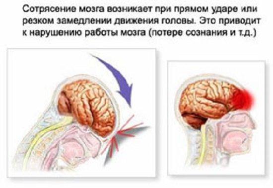 Как избавится от сотрясение мозга