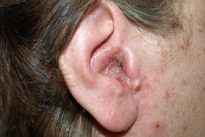 Отомикоз — симптомы и лечение