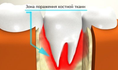 Остеомиелит челюсти — симптомы и лечение