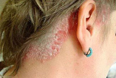 Трихофития — симптомы и лечение