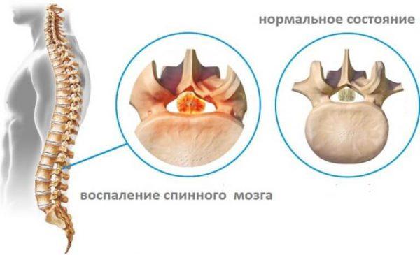 Миелит – симптомы и лечение, фото и видео.