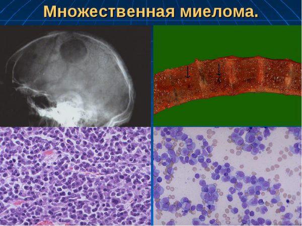 Миеломная болезнь - симптомы и лечение, фото и видео.