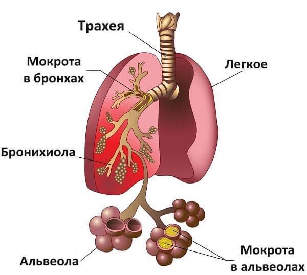 Трахеобронхит.