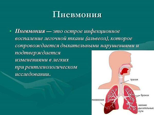 Пневмония – симптомы и лечение, фото и видео.