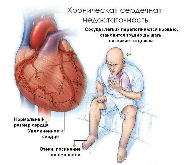Постинфарктный кардиосклероз - симптомы и лечение.