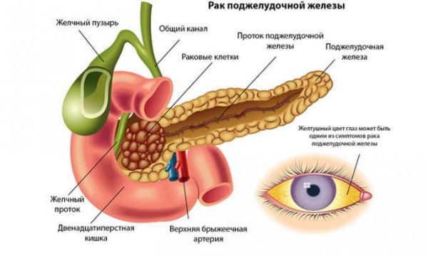 pancreatic cancer Find in-depth information on pancreatic cancer including symptoms ranging from pain in the upper or middle abdomen and back to jaundice.