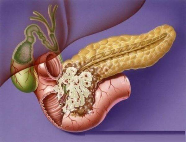 Рак поджелудочной железы - симптомы и лечение, фото и видео.