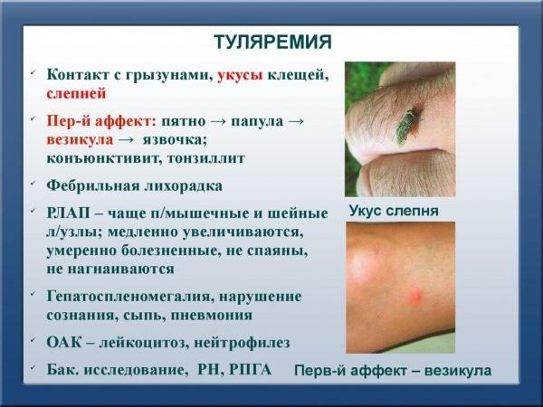 Туляремия – симптомы и лечение, фото и видео.