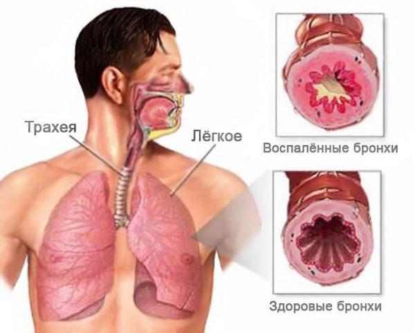 Хронический бронхит – симптомы и лечение, фото и видео.