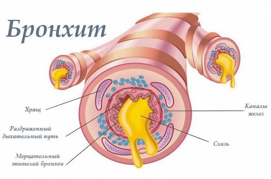 Хронический бронхит – симптомы и лечение, фото и видео