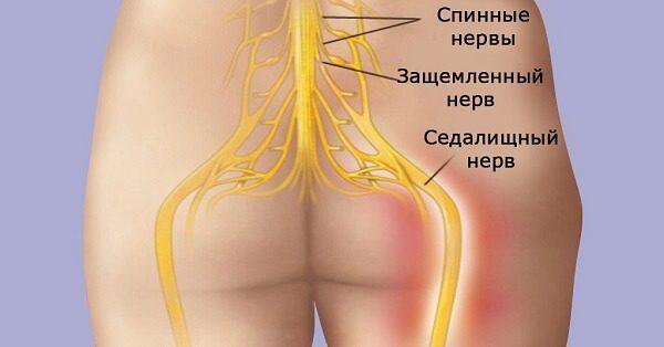 Защемление седалищного нерва - симптомы и лечение, фото и видео.