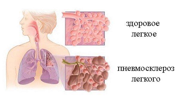 Диффузный пневмосклероз – симптомы и лечение, фото и видео