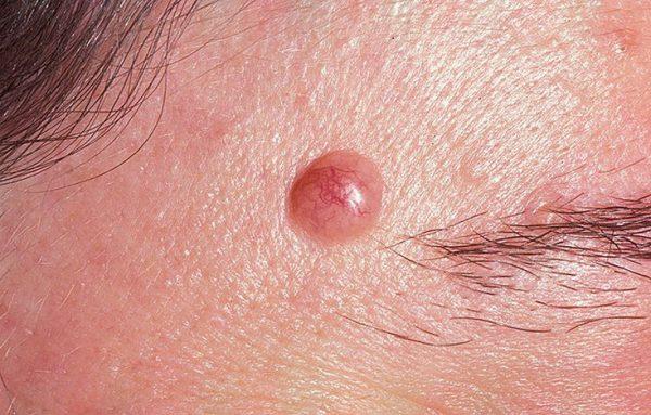 Симптомы и лечение юношеской меланомы.