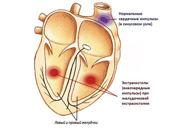 Желудочковая экстрасистолия - симптомы и лечение, фото и видео.