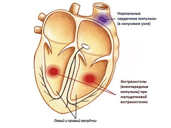 Желудочковая экстрасистолия — симптомы и лечение, фото и видео