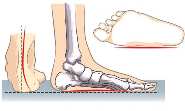 Продольное плоскостопие - симптомы и лечение, фото и видео.