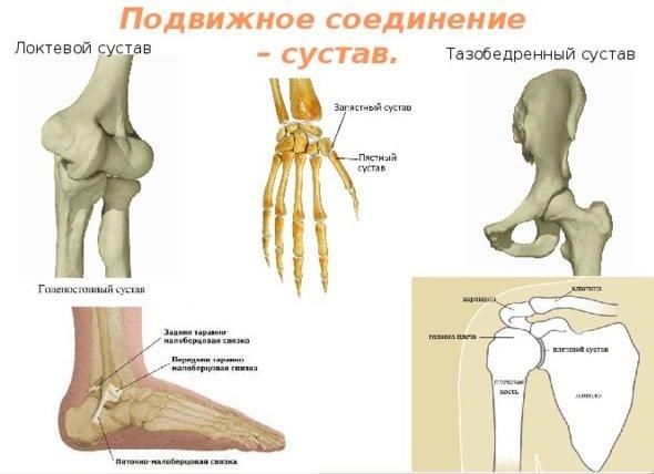 Ложный сустав - симптомы и лечение, фото и видео.