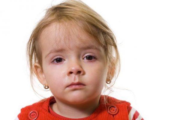 Лечение аллергического конъюнктивита у детей.