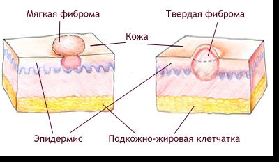 Фиброма - симптомы и лечение, фото и видео.