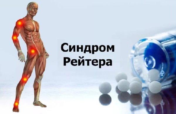 Болезнь Рейтера — симптомы и лечение, фото и видео